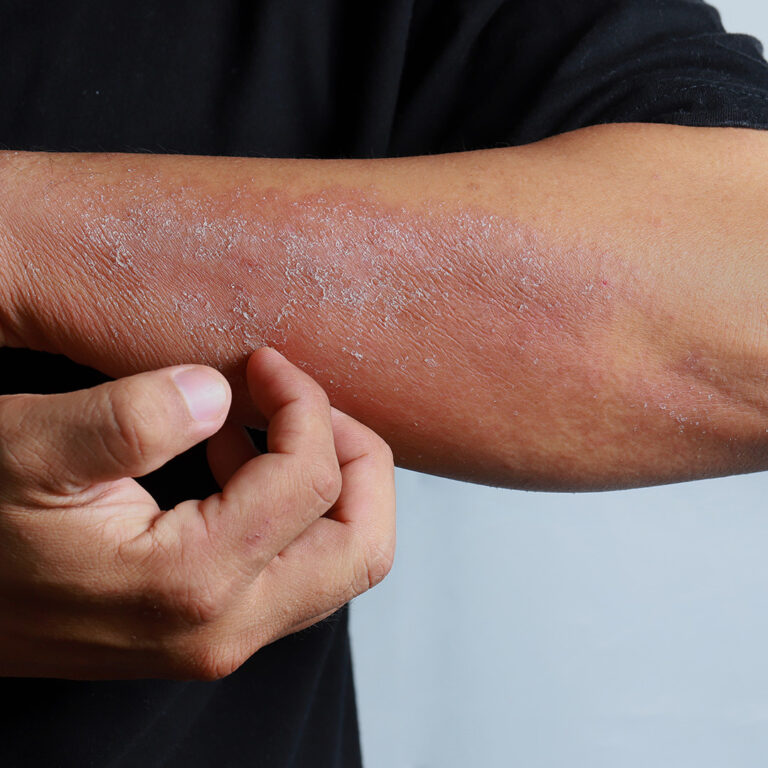 Dermatite atópica Call Clínica